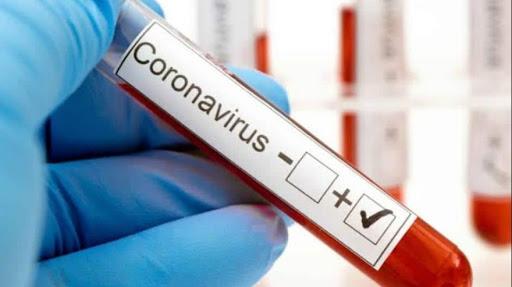 Confirman un caso positivo de coronavirus en Arrecifes